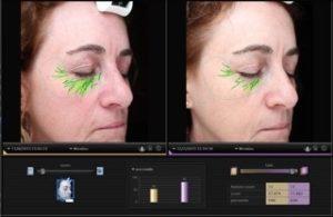 erases-wrinkles